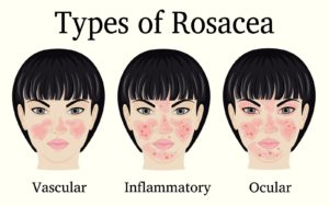 Causes of Rosacea