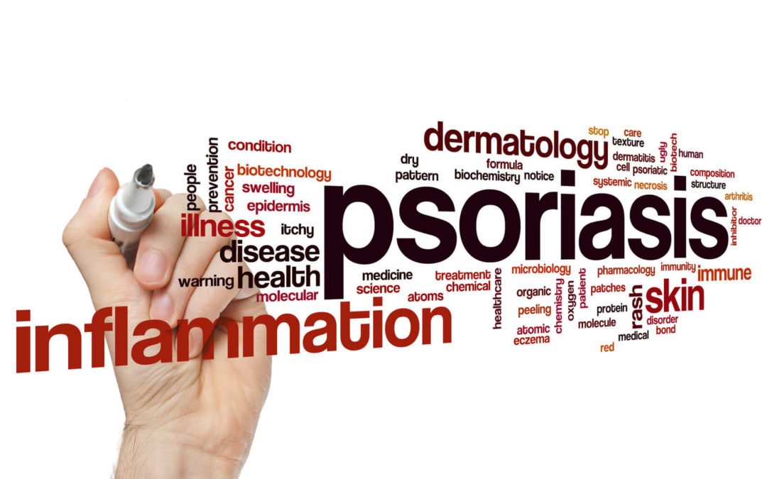 Are immune system dysfunctions responsible for the causes of Psoriasis?