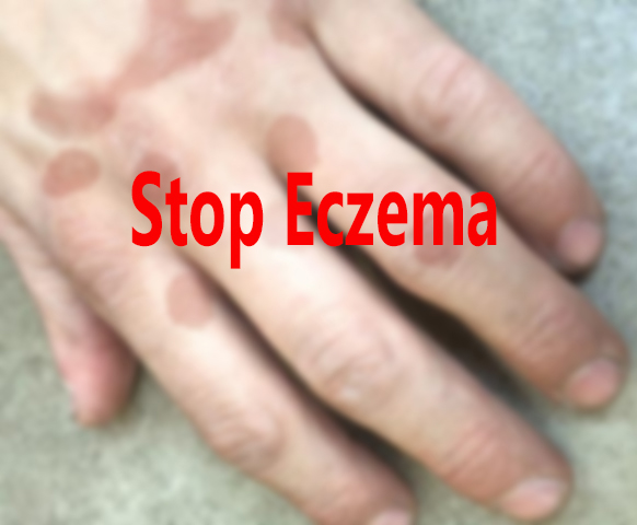 What are the immunologically linked causes of Eczema?