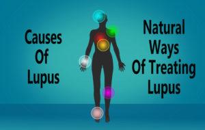 Causes of Lupus