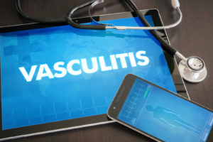 causes of vasculitis