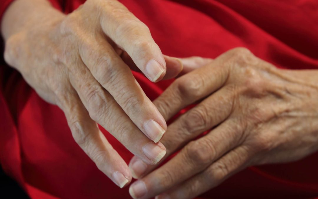 What are the immunological causes of Rheumatoid arthritis?